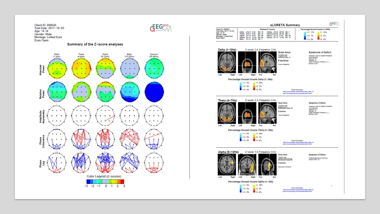 QEEG and sLoreta analsis